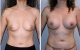 370cc-anatomiske-brystimplantat