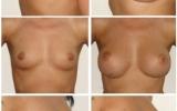 anatomiske-implantat-foran-muskelen