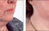 ansiktsloft-halsen