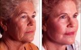 ansiktsloft-kjemisk-peeling