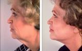 ansiktsloftning-kinnlinje