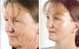 ansiktsloftning-oyelokksplastikk
