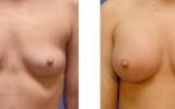bryst-forstoerrelse32