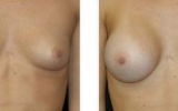 bryst-operasjon27