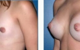 brystoperasjon26