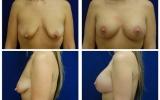 brystimplantat-brystloft-33