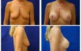 brystimplantat-brystloft-b-d