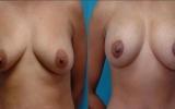 brystimplantat-loft