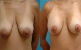 brystloft-brostimplantat