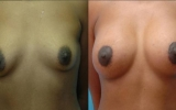 forstorrelse-brystloft