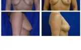 brystloft-44