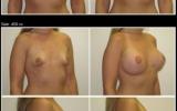 brystforstorrelse-mediumprofil