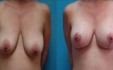 brystimplantat-brystloft1