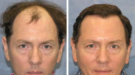 hårtransplantasjon i oslo