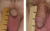 penisforstoerrelse2