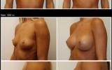 brystimplantat-300cc-memory-gel