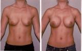 runde-brystimplantat-hoy-profil2