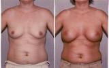 runde-brystimplantat-under-brystmuskelen