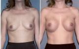 runde-brystimplantat-under