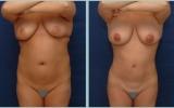 bodyjet-fettransplantasjon