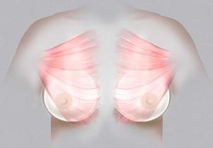 Plassering av brystimplantat bak muskelen