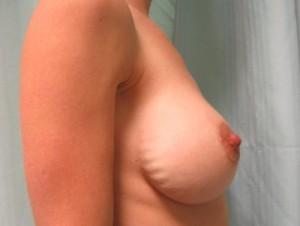 Permanent rippling etter brystforstørrelse