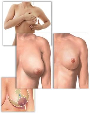 Brystreduksjon for forminskning av bryster