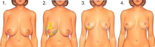 Operasjonsløpet ved brystreduksjon