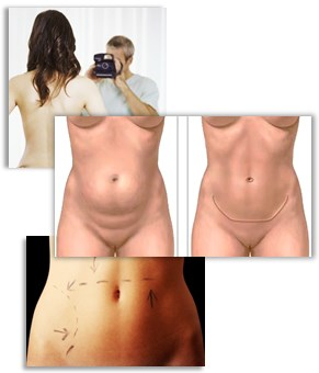 Bukplastikk en plastisk operasjon av magen