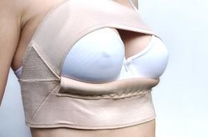 BH etterpå en brystforstørring