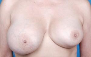 Kapselkontraktur etter brystforstørrelse