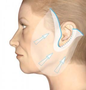 Metoder for ansiktsløftning (ansiktsløft)