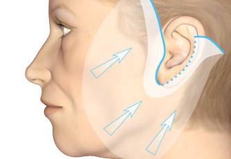 Metoder for ansiktsløftning