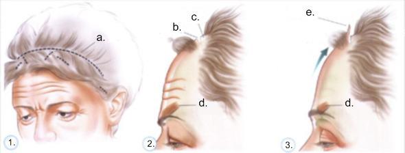 Tradisjonelt (åpent) panneløft/øyenbrynsløft