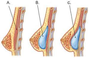 Brystimplantetenes plassering