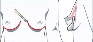 Folden under brystet vanligste snittplasseringen