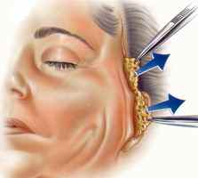 strekking ansiktsløfting