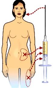 fettinjeksjoner-Leppeforstorrelse