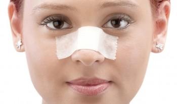 Tiden etter din neseplastikk