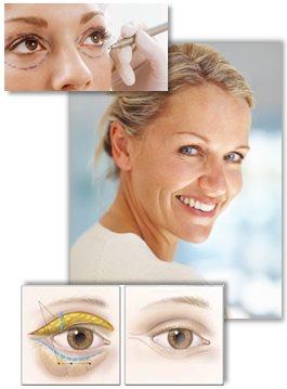 Egnete kandidater for øyelokkplastikk