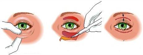 Gjennomføring av en øyelokksplastikk