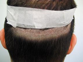Tiden etter hårtransplantasjonen din