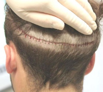 Etter hårtransplantasjonen