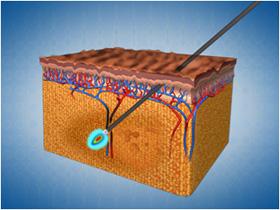 Slike fungerer en laserfettsuging (Smart Lipo)