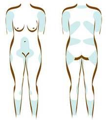 Fettsuging av mage (spesielt nedenfor navlen), hofter (bilringer/lovehandles), utsiden av lårene (ridebukselår), kneets innside, ryggen, halsen og haken.
