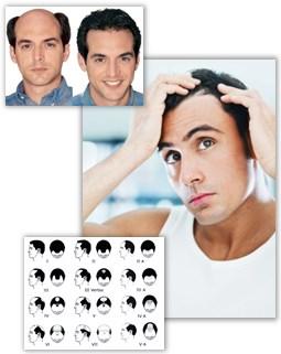 Mannlig og kvinnelig håravfall