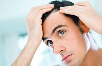 Alt om håravfall