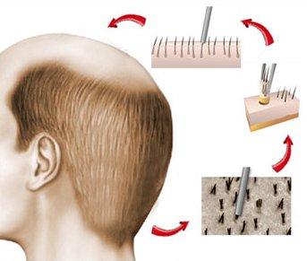 Hårtransplantasjon med FUE (FUT)-metoden