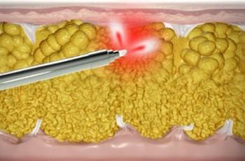 Laserfettsuging (SmartLipo) | Alt om fettsuging med laser