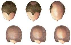 håravfall hos menn
